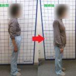 【股関節・臀部痛に対する治療例】
