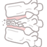 【脊椎骨折後の痛みにも、筋膜リリースを】