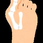 【外反母趾が痛いのは、外反母趾だからじゃないよ】